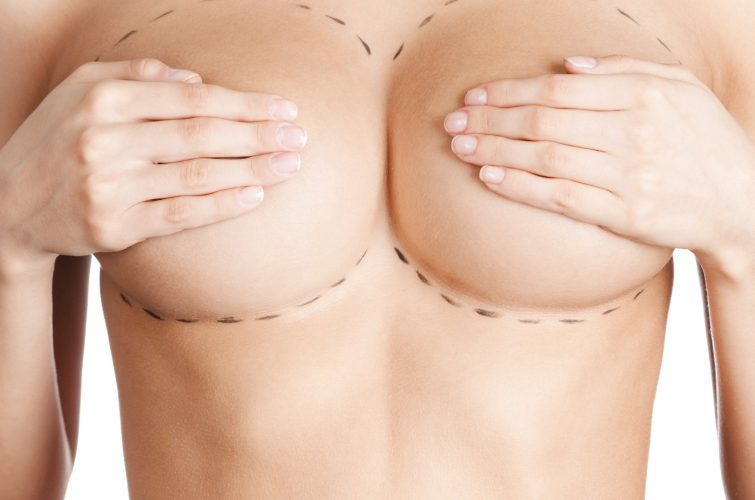 breast enlargament